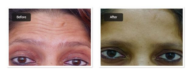 pre & post images botox treatment