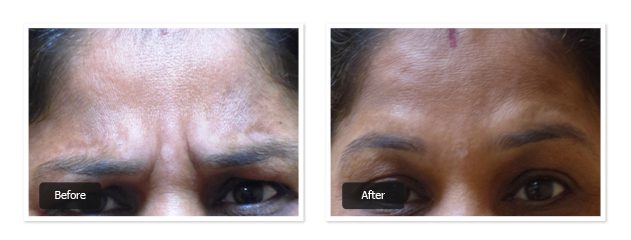 pre & post images of botox treatment