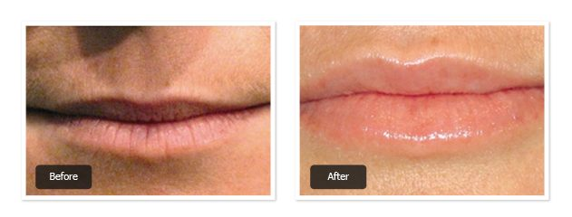 pre & post images of lip filler treatment