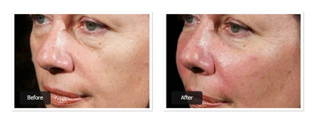 botox for Anti aging treatment