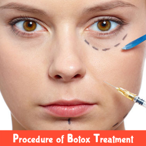 Procedure of Botox Treatment