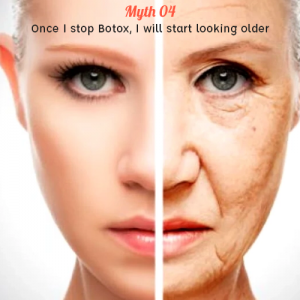 Once I stop Botox, I will start looking older