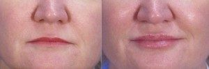 before & after image of lip filler treatment