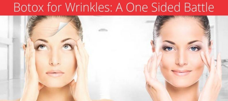 BOTOX FOR WRINKLES: A ONE SIDED BATTLE
